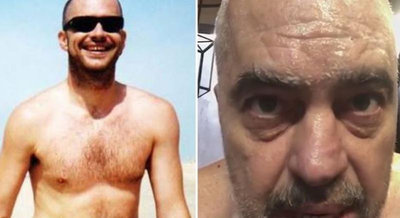 Ish-ministri socialist tall keq Ramën: Je aq transparent me shqiptarët, si fotoja nudo që dole në plazh